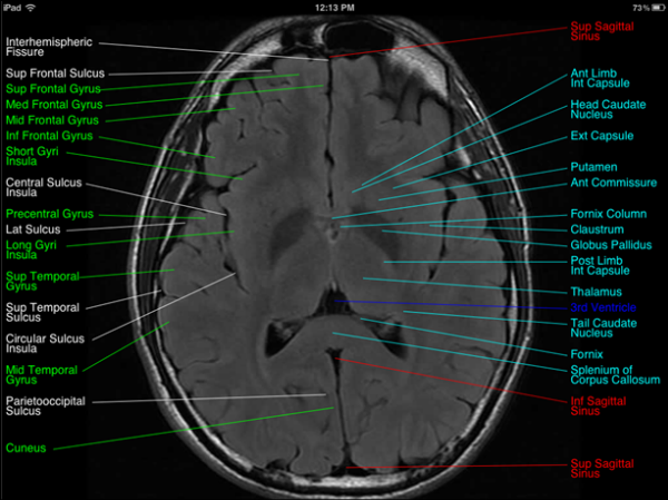 MRI Brain Anatomy
